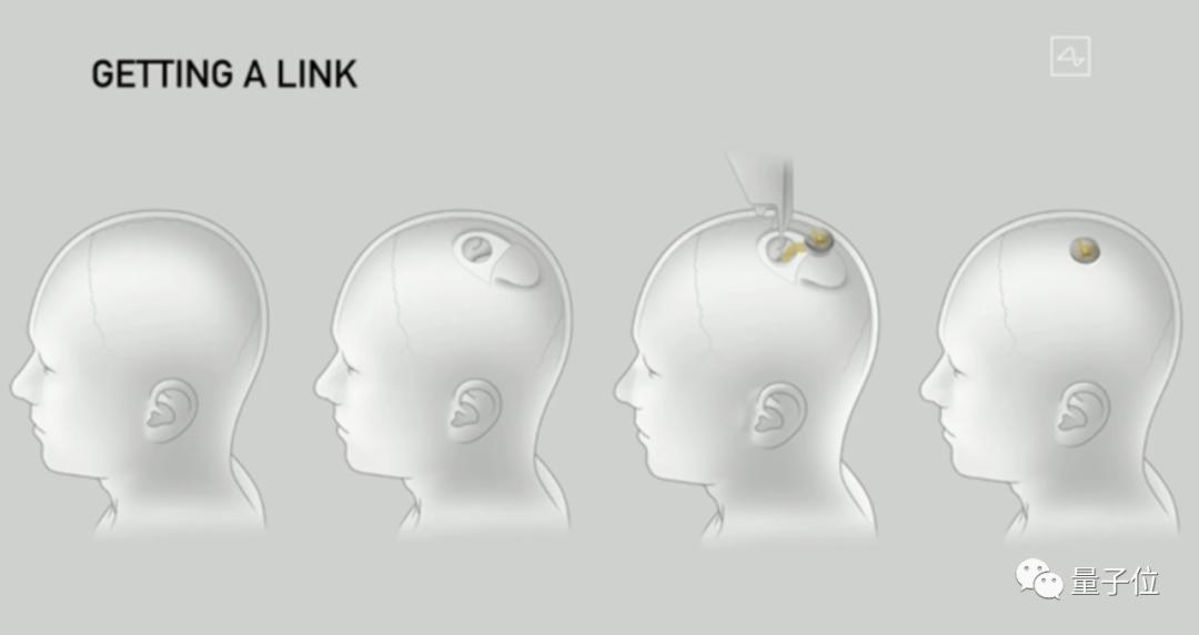 静脉植入脑机接口,无需开颅,人体实验已初步展开